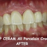 On porcelain crowns