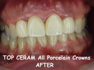 Porcelain crowns of Makati dental clinic